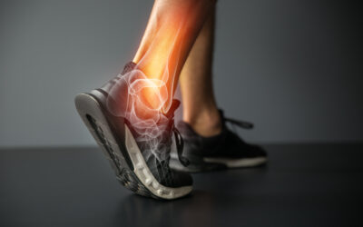 Relieving Painful Arthritis with an Ankle Replacement